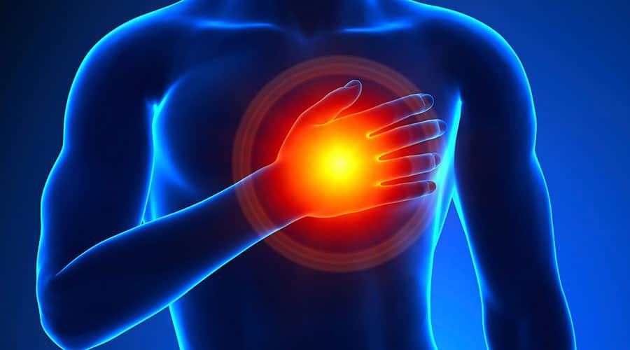 Heart Attack Assessment