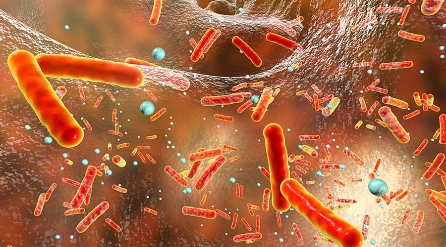 Infectious Diseases A to Z - Acinetobacter Bacteria