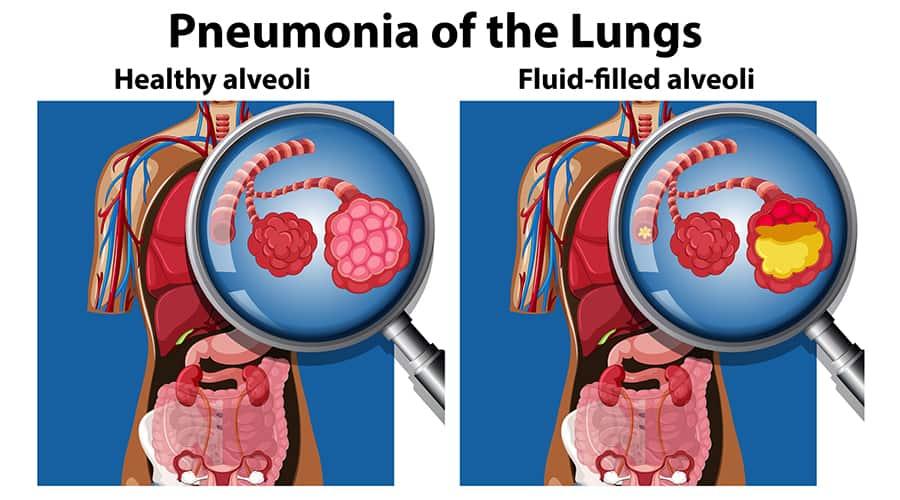 worst type of pneumonia