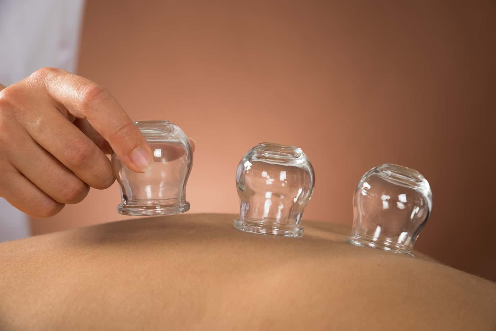 Combining Iastm With Cupping And Manual Therapy