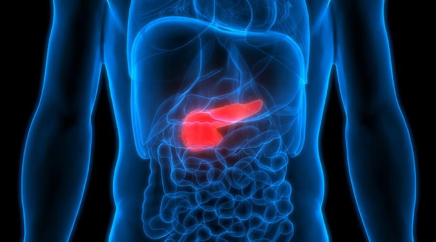 pancreatic tumor model