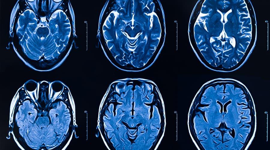 acute ischemic stroke patients