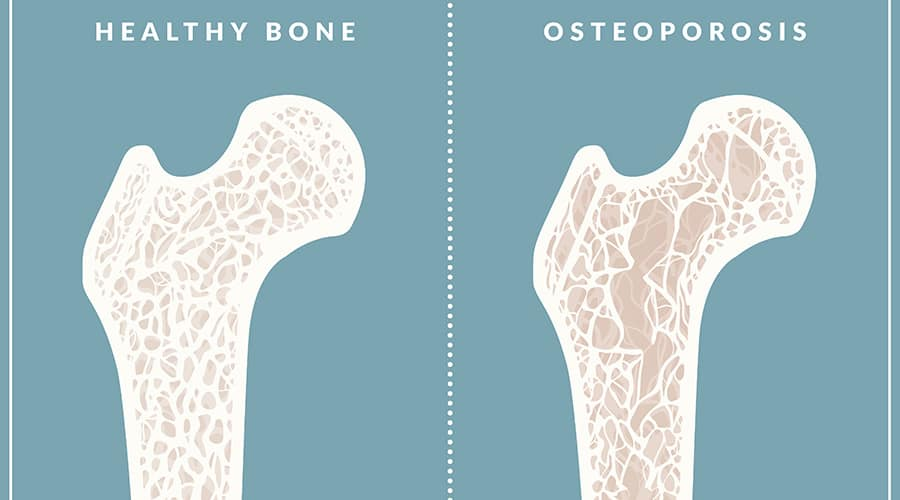 37+ Which is worse osteopenia or osteoporosis ideas